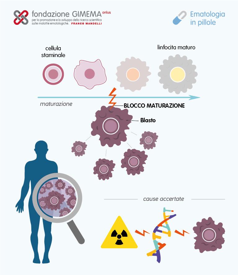 Leucemia-linfoblastica-acuta-Eip-26