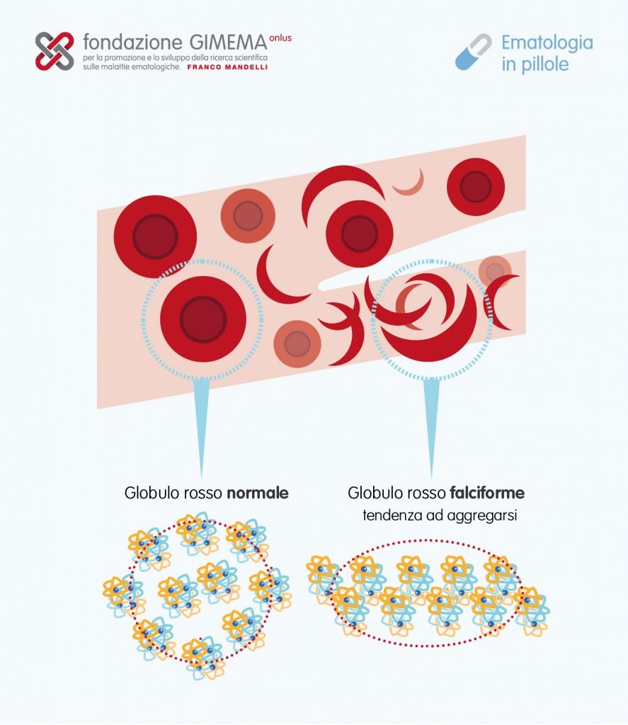 Anemia Falciforme – Ematologia in pillole – Fondazione GIMEMA
