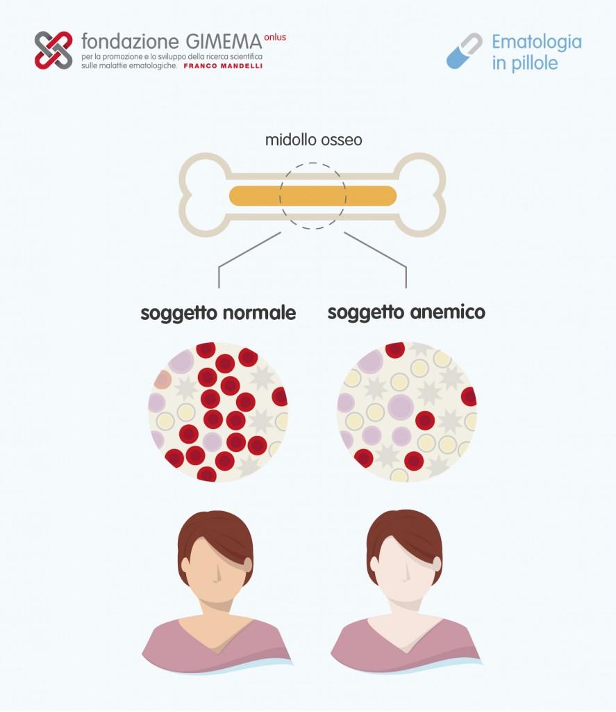Anemia aplastica – Ematologia in pillole – Fondazione GIMEMA