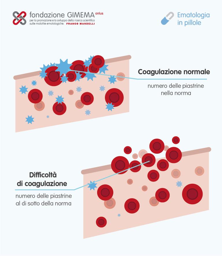 Trombocitopenie – Ematologia in Pillole – Fondazione GIMEMA