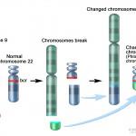 cml_ traslocazione cromosoma