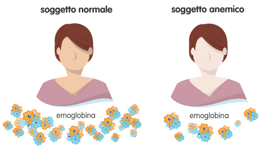 Emoglobina – Anemie e Piastrinopenie – Fondazione GIMEMA