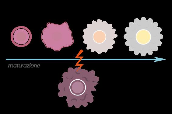 leucemia linfoblastica acuta (LLA)