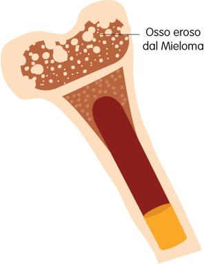Osso eroso dal mieloma – Mieloma Multiplo – Fondazione GIMEMA