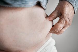 Flora batterica intestinale alterata e trapianto di cellule staminali – Fondazione GIMEMA