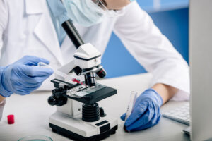 leucemia eritroide acuta - Fondazione GIMEMA